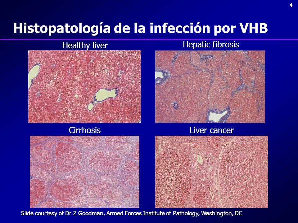 Histopatología de la infección por VHB