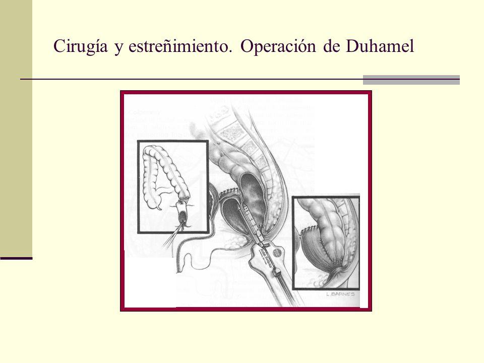 Cirugía y estreñimiento. Operación de Duhamel