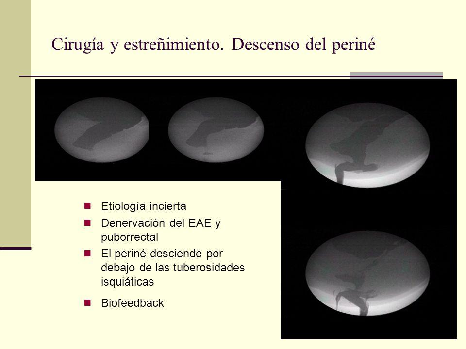 Cirugía y estreñimiento. Descenso del periné