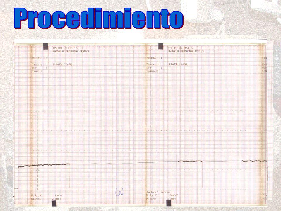 Procedimiento Vía yugular interna Control fluoroscópico