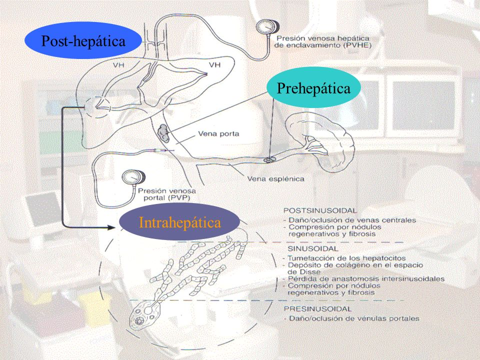 Post-hepática Prehepática Intrahepática