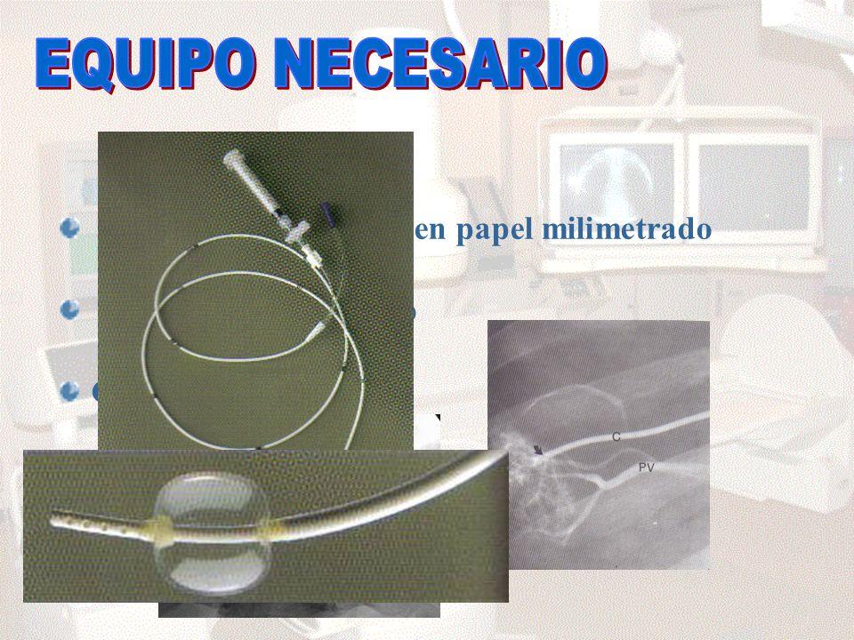 EQUIPO NECESARIO Polígrafo con registro en papel milimetrado