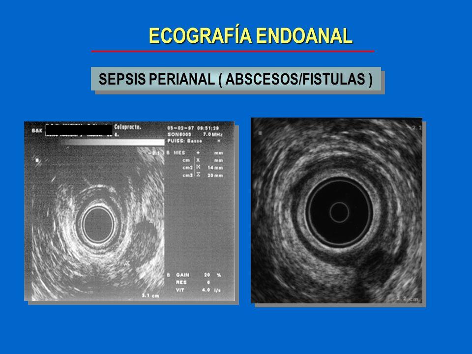 SEPSIS PERIANAL ( ABSCESOS/FISTULAS )