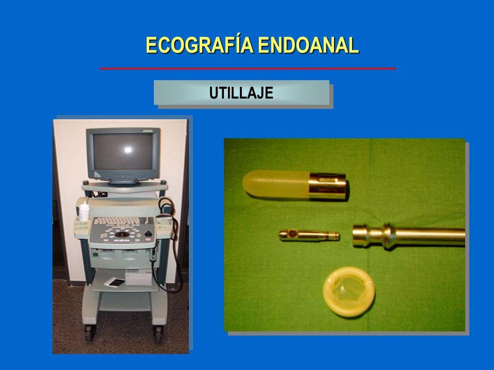 ECOGRAFÍA ENDOANAL UTILLAJE