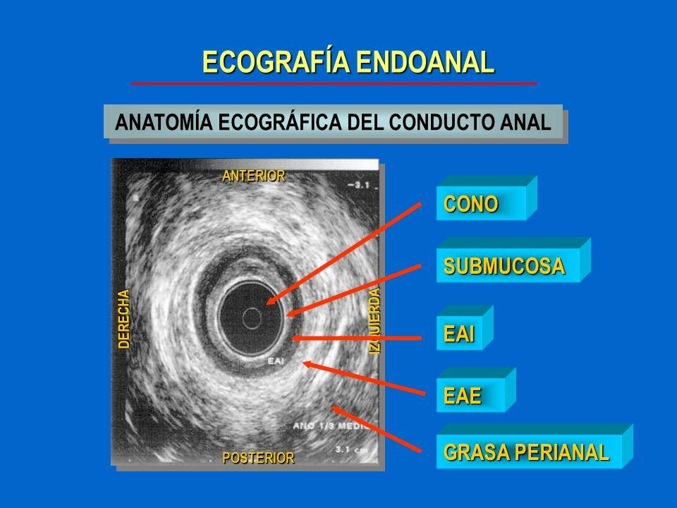 ANATOMÍA ECOGRÁFICA DEL CONDUCTO ANAL