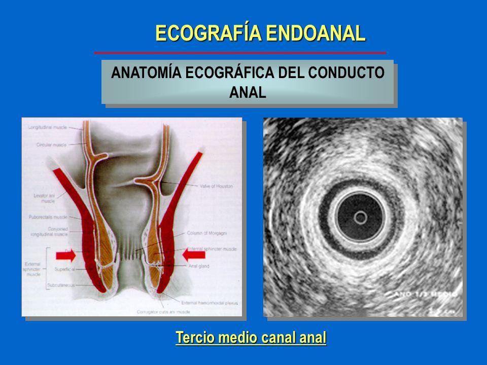 ANATOMÍA ECOGRÁFICA DEL CONDUCTO ANAL Tercio medio canal anal