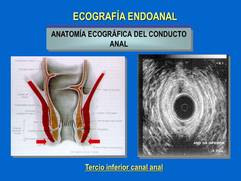 ANATOMÍA ECOGRÁFICA DEL CONDUCTO ANAL Tercio inferior canal anal
