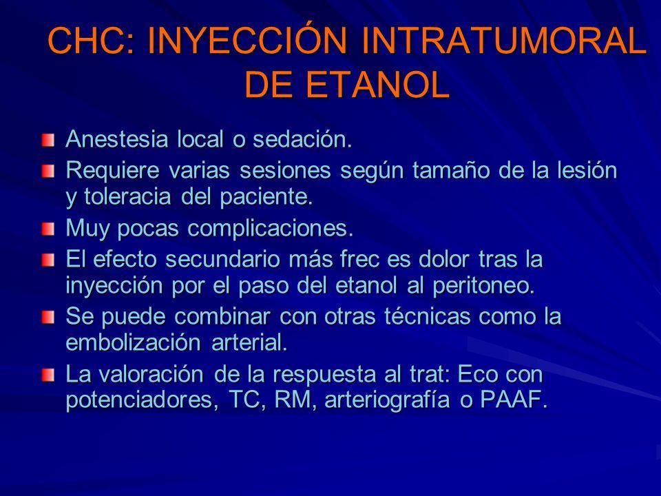 CHC: INYECCIÓN INTRATUMORAL DE ETANOL
