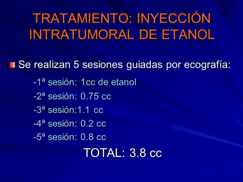 TRATAMIENTO: INYECCIÓN INTRATUMORAL DE ETANOL