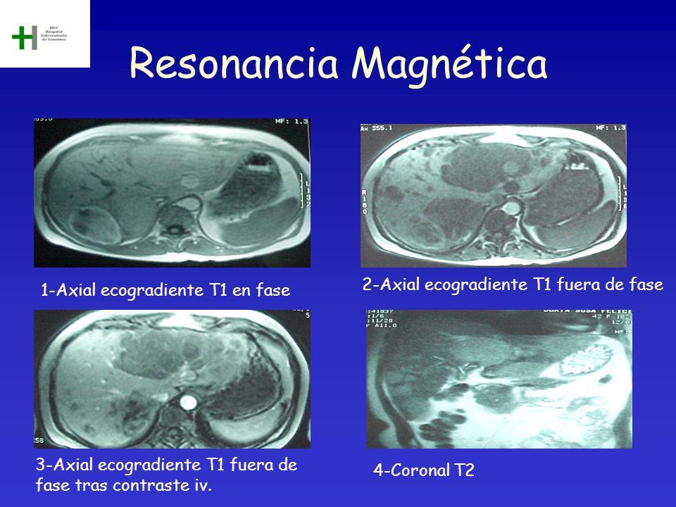 Resonancia Magnética 2-Axial ecogradiente T1 fuera de fase