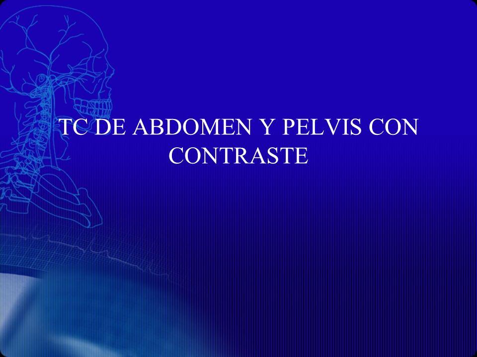 TC DE ABDOMEN Y PELVIS CON CONTRASTE