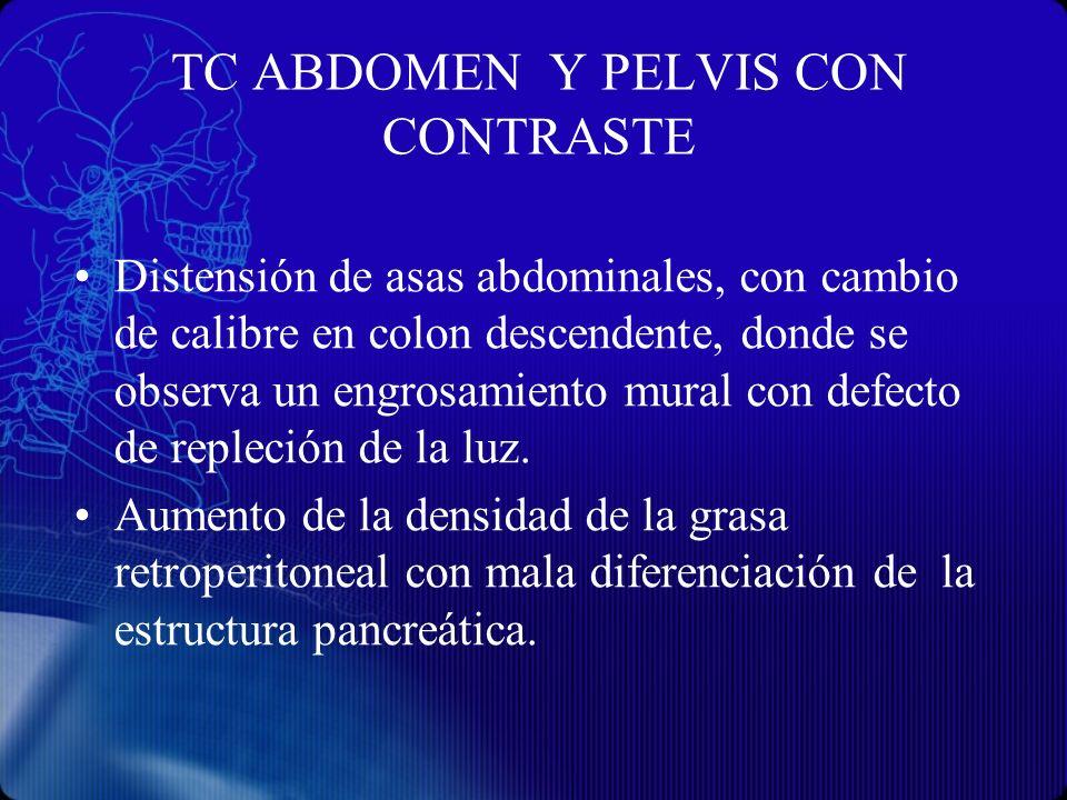 TC ABDOMEN Y PELVIS CON CONTRASTE