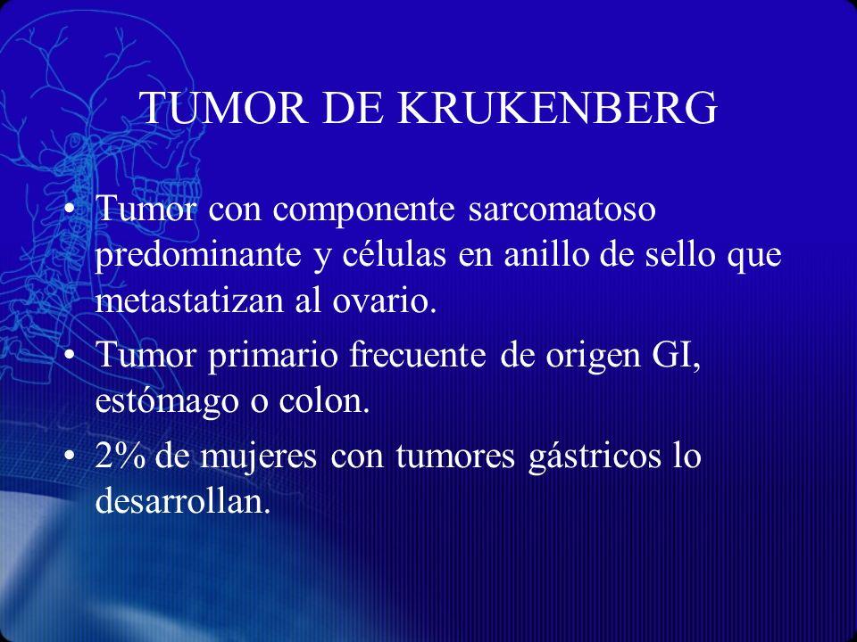 TUMOR DE KRUKENBERG Tumor con componente sarcomatoso predominante y células en anillo de sello que metastatizan al ovario.