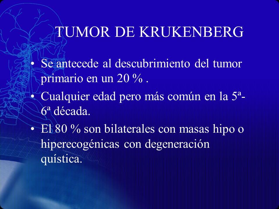 TUMOR DE KRUKENBERG Se antecede al descubrimiento del tumor primario en un 20 % . Cualquier edad pero más común en la 5ª- 6ª década.