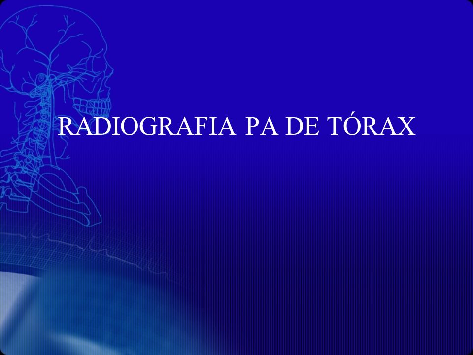 RADIOGRAFIA PA DE TÓRAX