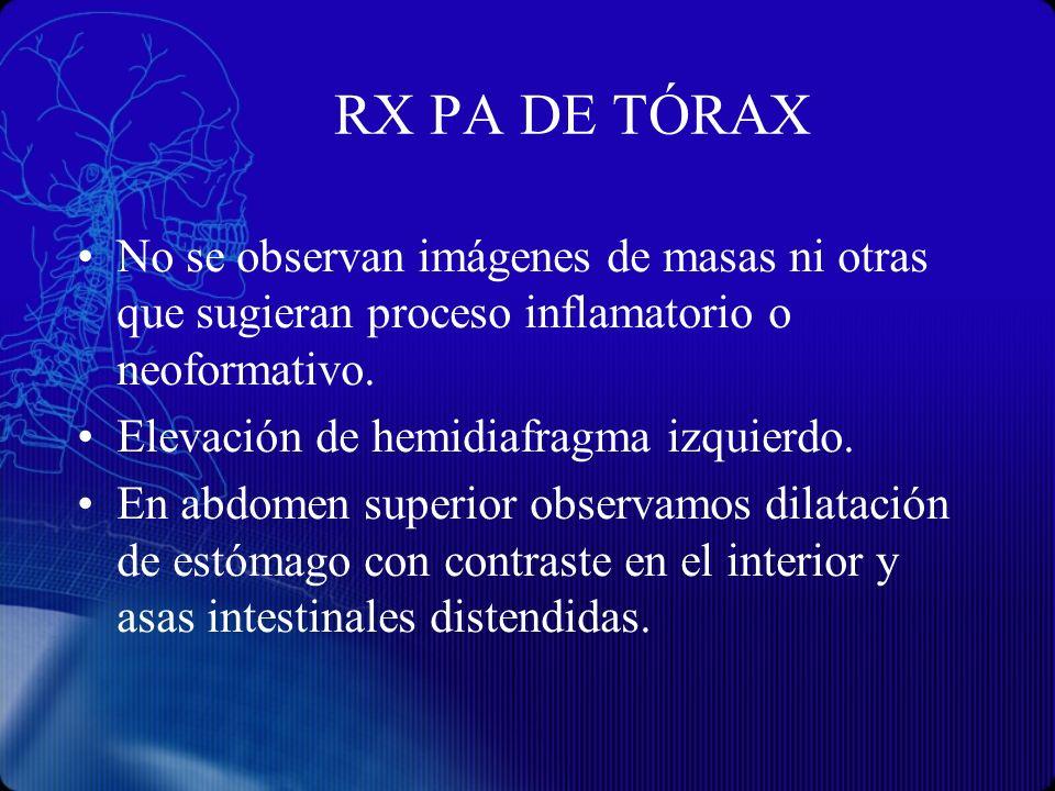 RX PA DE TÓRAXNo se observan imágenes de masas ni otras que sugieran proceso inflamatorio o neoformativo.