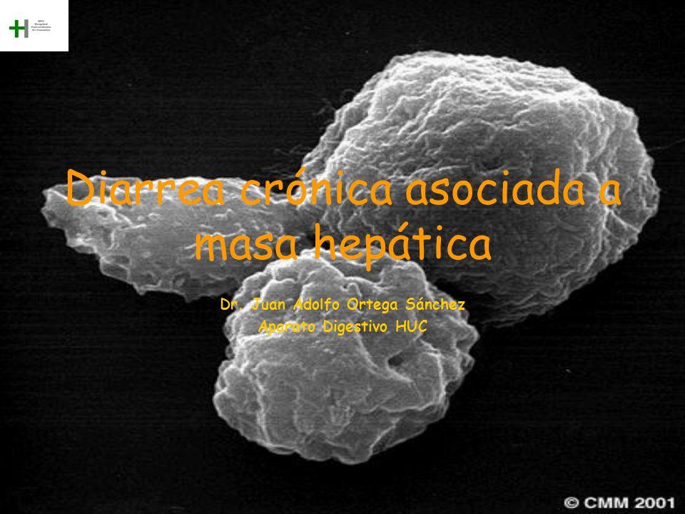 Diarrea crónica asociada a masa hepática