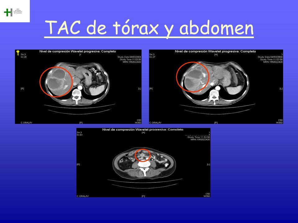 TAC de tórax y abdomen