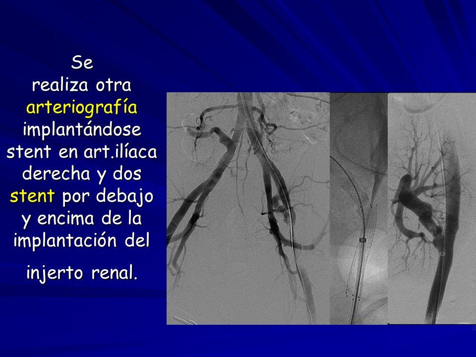 Se realiza otra arteriografía implantándose stent en art