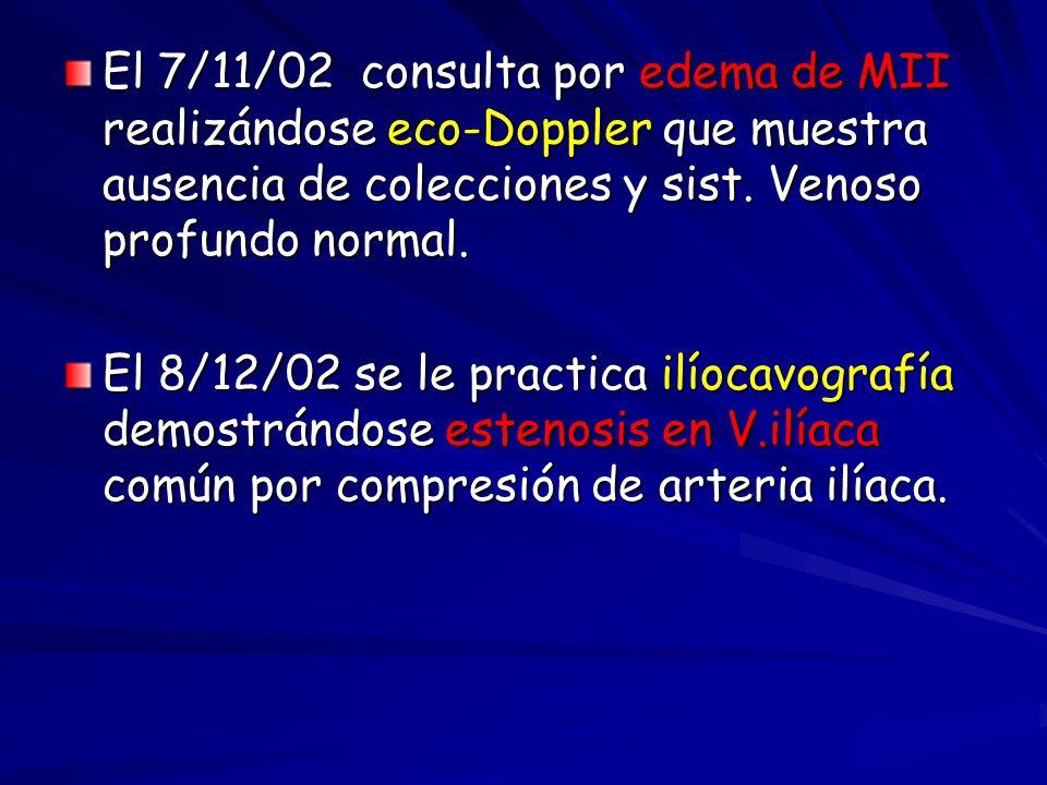 El 7/11/02 consulta por edema de MII realizándose eco-Doppler que muestra ausencia de colecciones y sist. Venoso profundo normal.