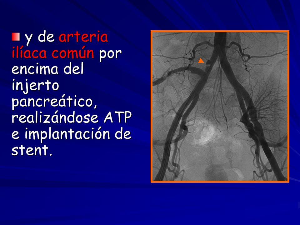 y de arteria ilíaca común por encima del injerto pancreático, realizándose ATP e implantación de stent.