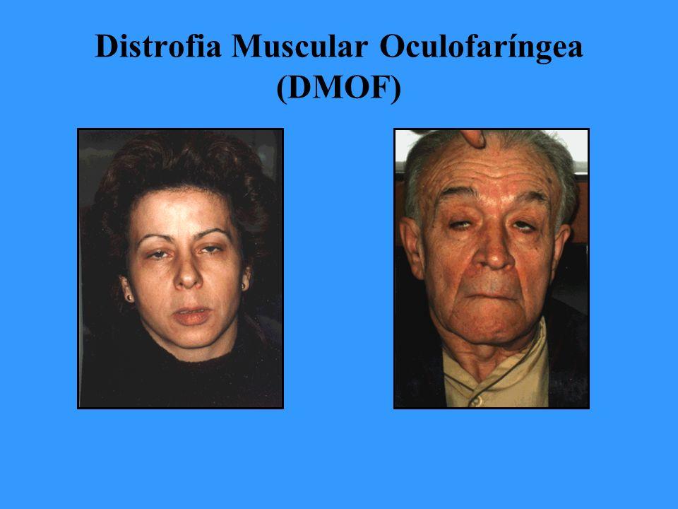 Distrofia Muscular Oculofaríngea (DMOF)