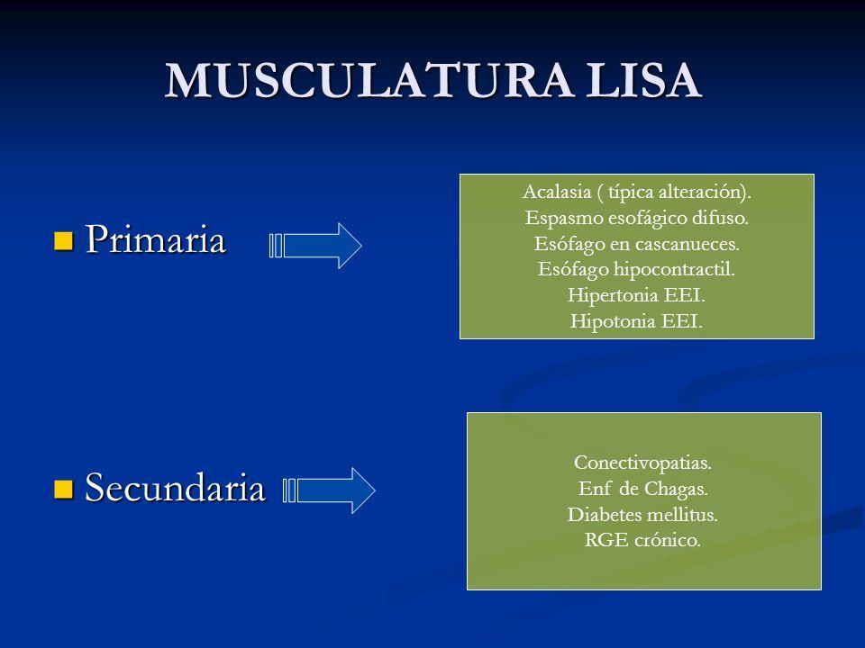 MUSCULATURA LISA Primaria Secundaria Acalasia ( típica alteración).