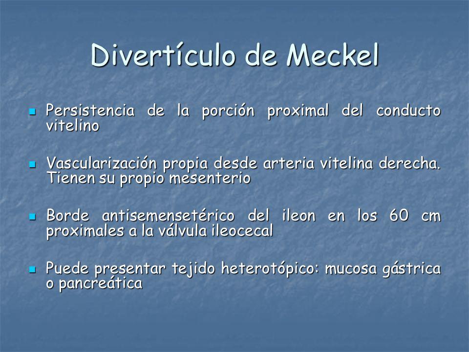 Divertículo de MeckelPersistencia de la porción proximal del conducto vitelino.