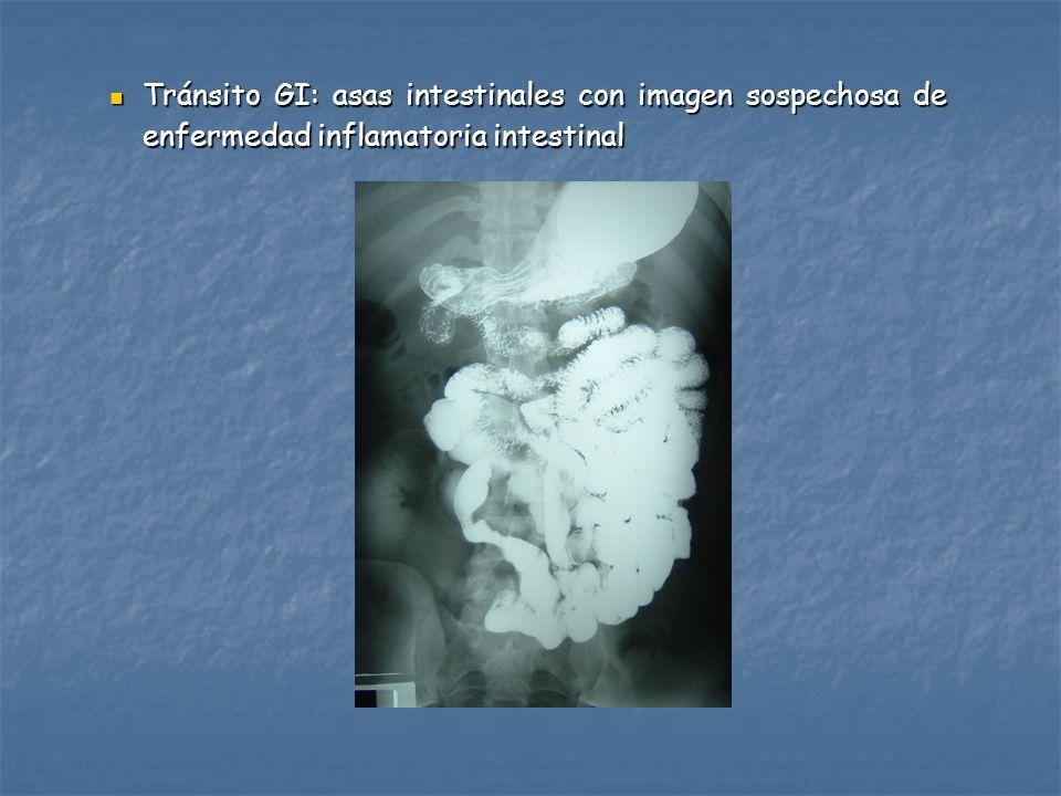 Tránsito GI: asas intestinales con imagen sospechosa de enfermedad inflamatoria intestinal