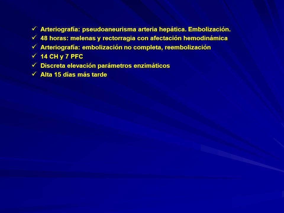 Arteriografía: pseudoaneurisma arteria hepática. Embolización.
