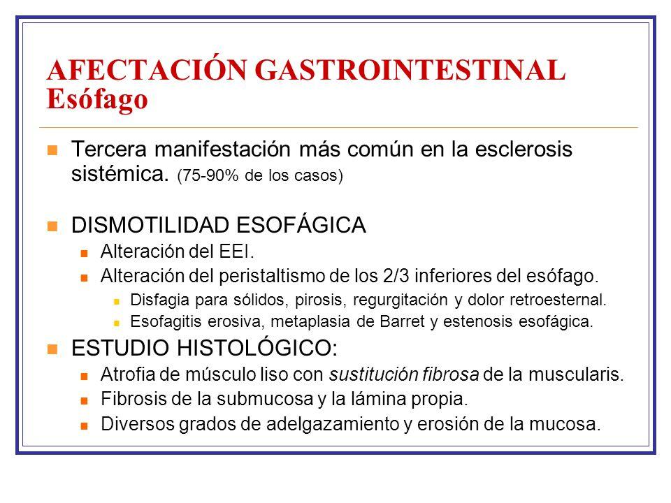 AFECTACIÓN GASTROINTESTINAL Esófago