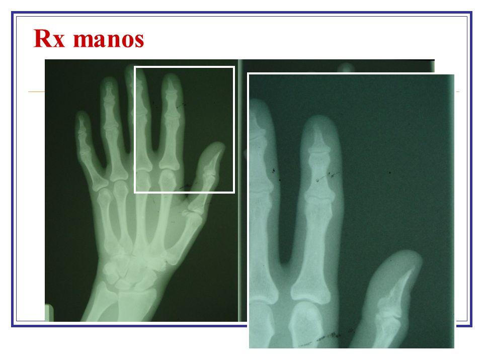 Rx manos