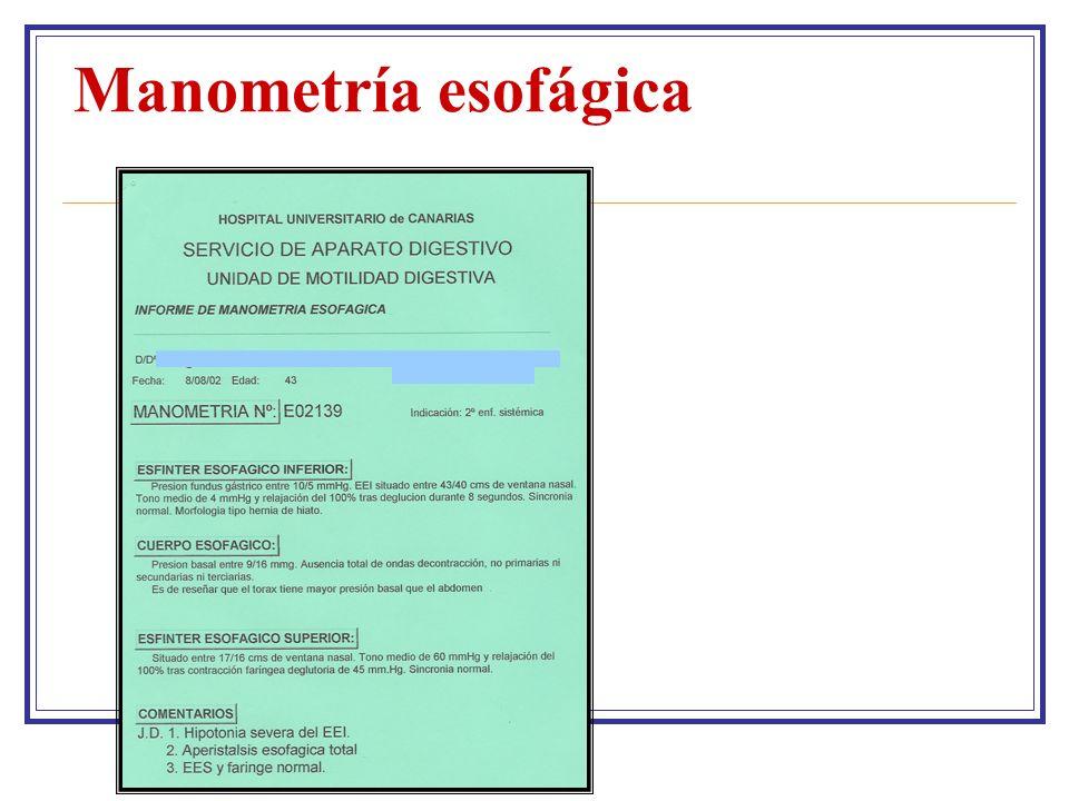 Manometría esofágica