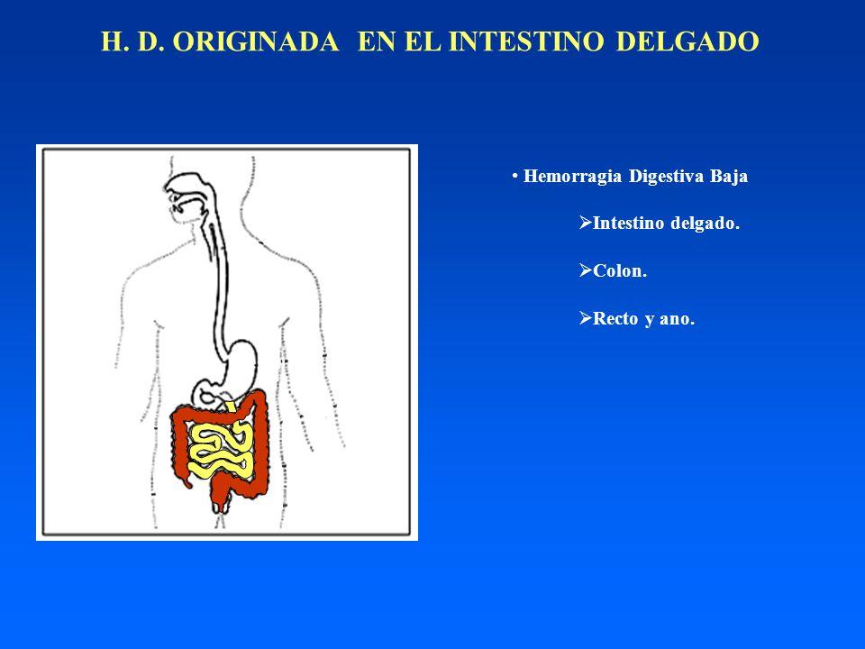 H. D. ORIGINADA EN EL INTESTINO DELGADO