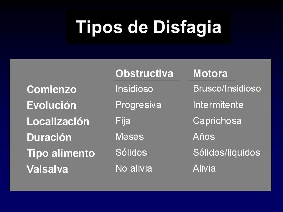 Tipos de Disfagia