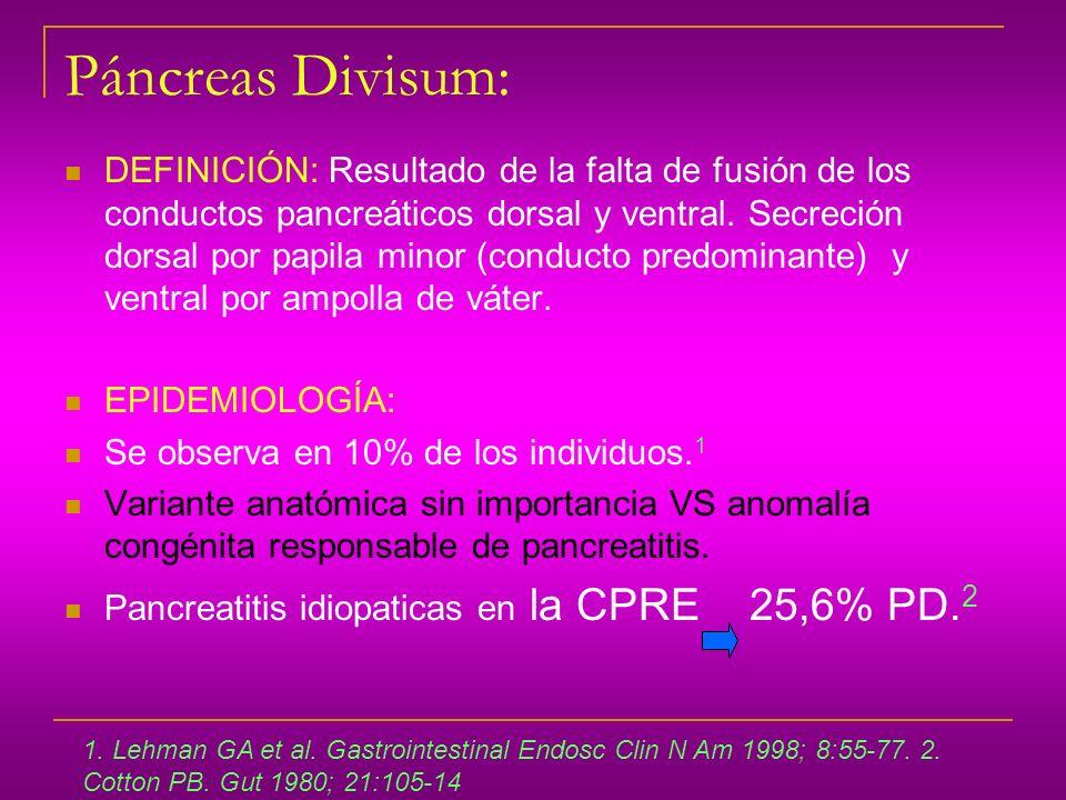 Páncreas Divisum:
