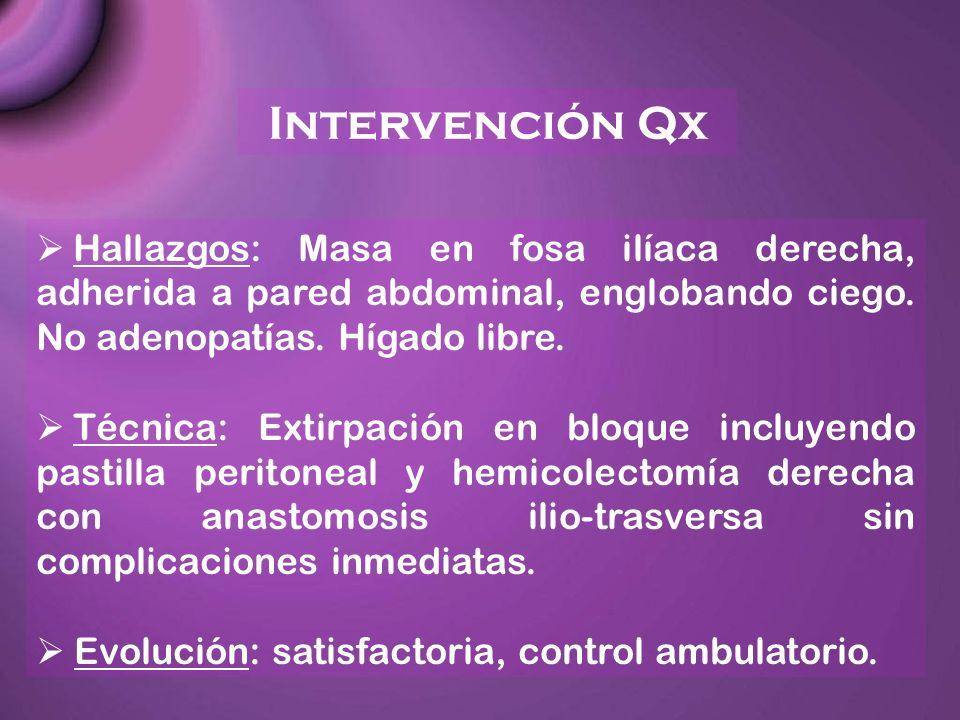 Intervención Qx Hallazgos: Masa en fosa ilíaca derecha, adherida a pared abdominal, englobando ciego. No adenopatías. Hígado libre.