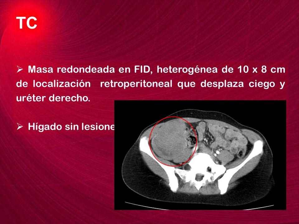 TC Masa redondeada en FID, heterogénea de 10 x 8 cm de localización retroperitoneal que desplaza ciego y uréter derecho.