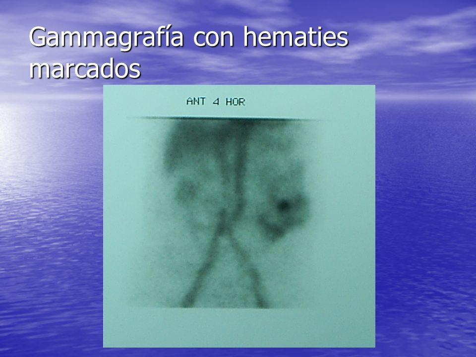 Gammagrafía con hematies marcados