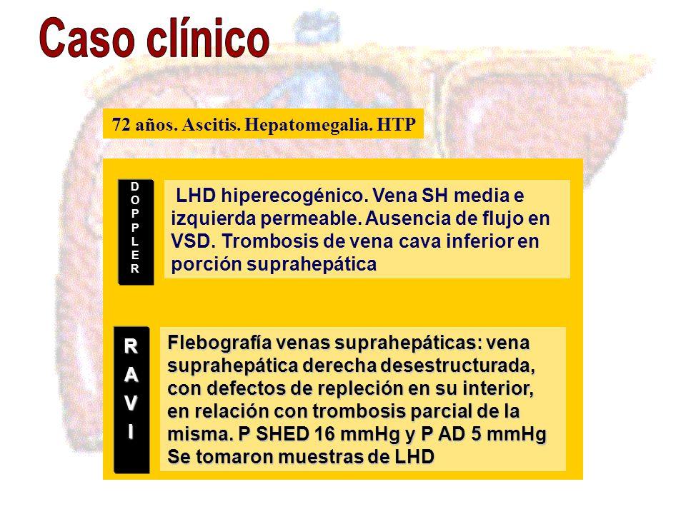 72 años. Ascitis. Hepatomegalia. HTP