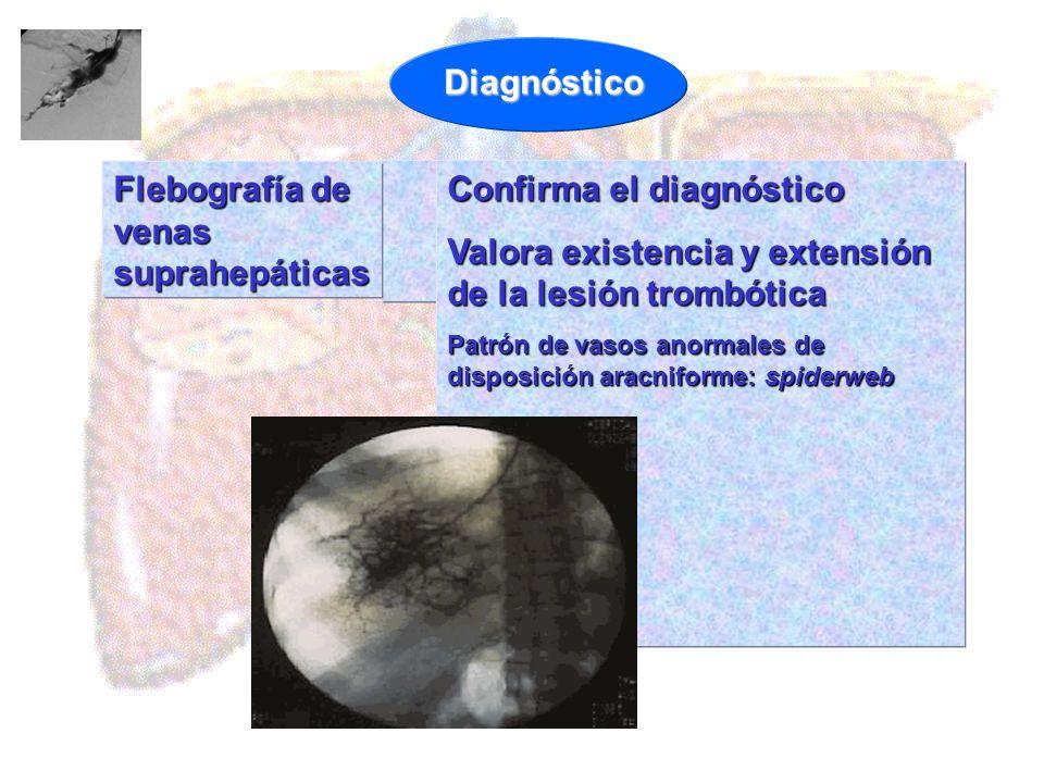Flebografía de venas suprahepáticas Confirma el diagnóstico