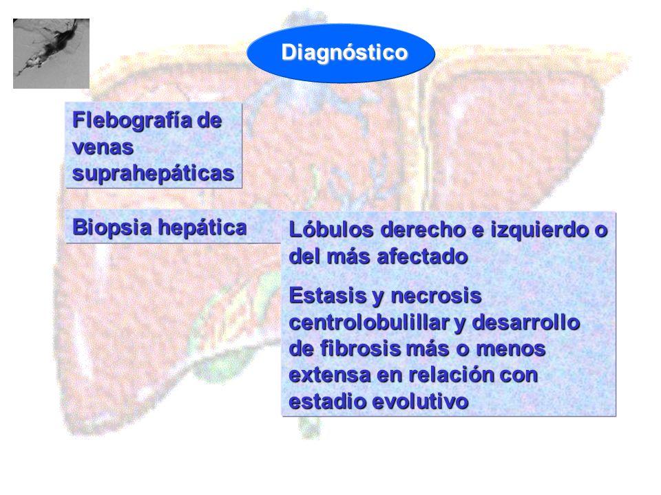 Diagnóstico Flebografía de venas suprahepáticas. Biopsia hepática. Lóbulos derecho e izquierdo o del más afectado.