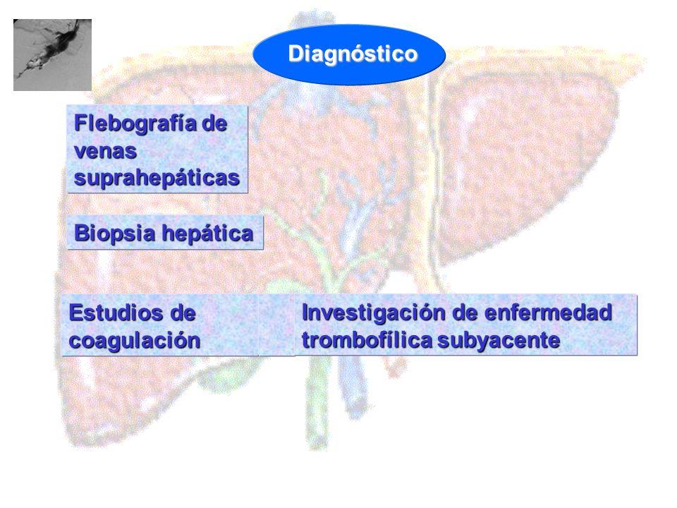 Diagnóstico Flebografía de venas suprahepáticas. Biopsia hepática.