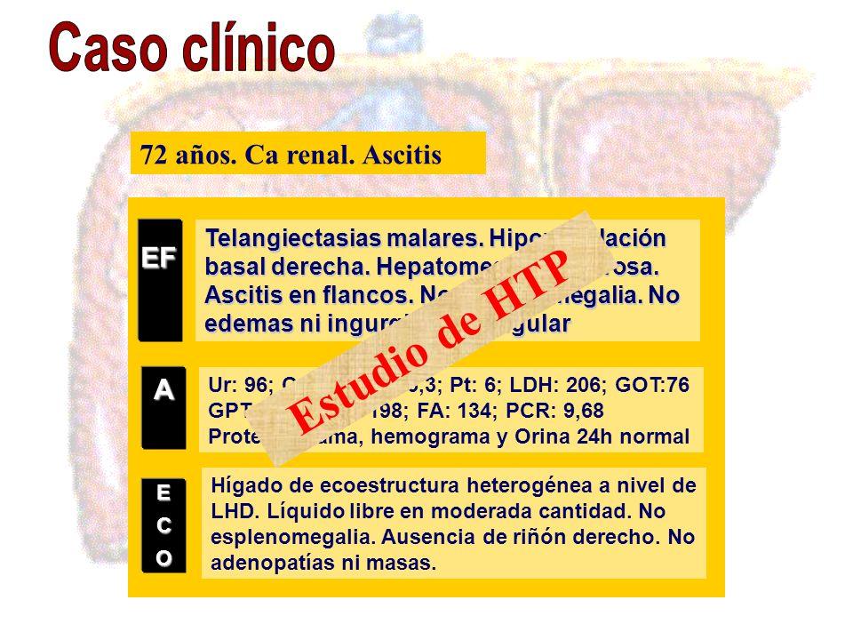 Estudio de HTP Caso clínico EF 72 años. Ca renal. Ascitis A