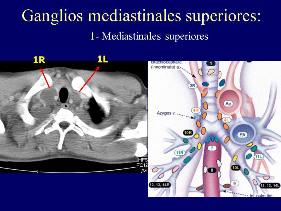 Ganglios mediastinales superiores: