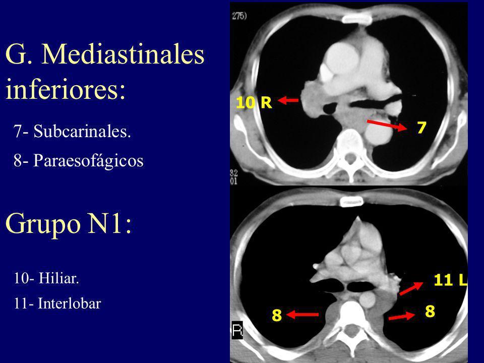 G. Mediastinales inferiores: