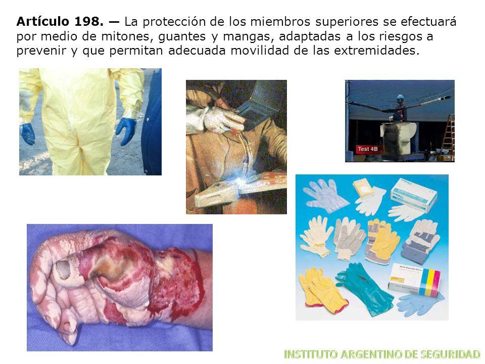 Artículo 198. — La protección de los miembros superiores se efectuará por medio de mitones, guantes y mangas, adaptadas a los riesgos a prevenir y que permitan adecuada movilidad de las extremidades.