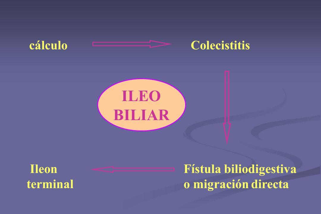 ILEO BILIAR cálculo Colecistitis Ileon terminal Fístula biliodigestiva