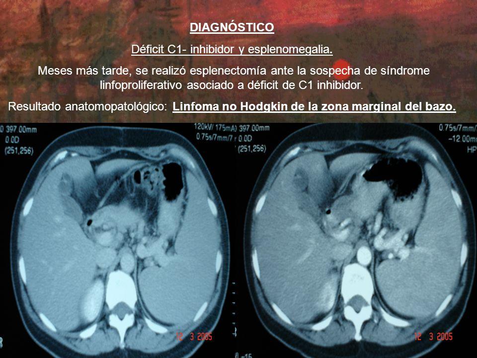 Déficit C1- inhibidor y esplenomegalia.