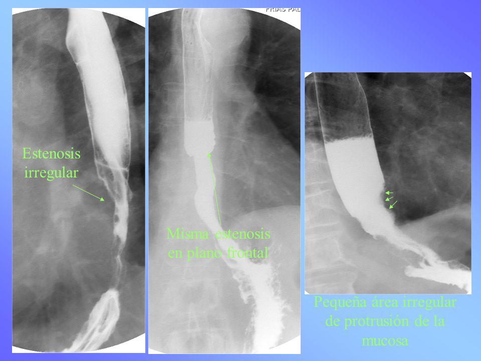 Pequeña área irregular de protrusión de la mucosa